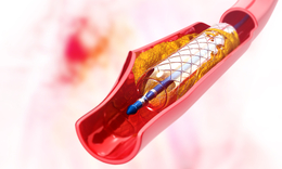 Stents - how they help your heart