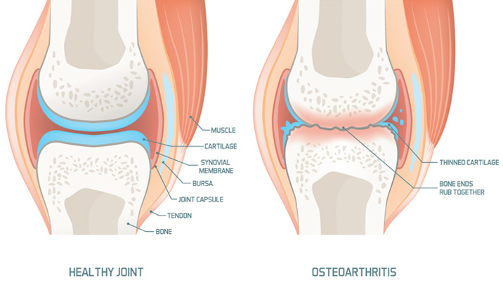 Knee replacement surgery - Arthritis